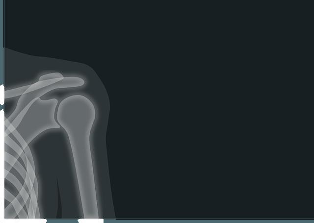 shoulder pain in Houston